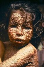 230px-Child_with_Smallpox_Bangladesh